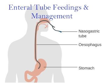 Enteral Feeding Combat Malnutrition After Injury or Illness